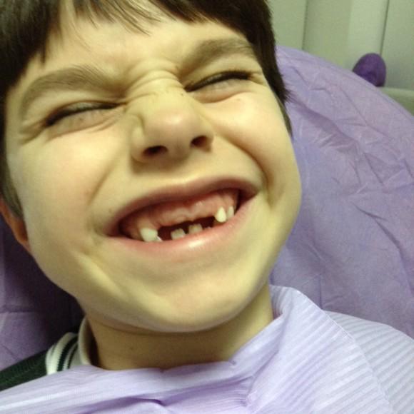 ¿Un diente extraño? Muchas veces las mamas se asustan en estos casos